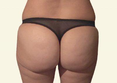 BodyTite+ fatgrafting (buttocks)_2_after