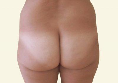 BodyTite+ fatgrafting (buttocks)_2_before
