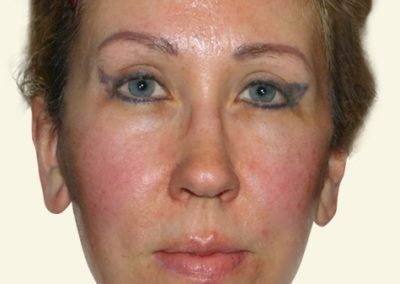 Facelift+Browlift after