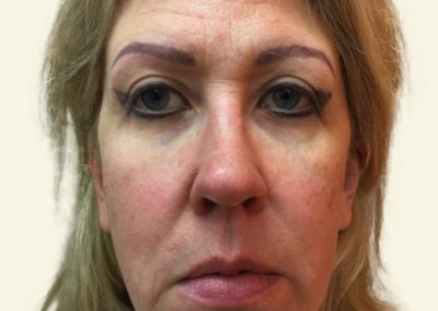 Facelift+Browlift before