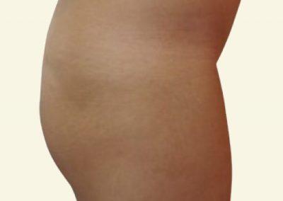 Fatgrafting (buttocks) -before