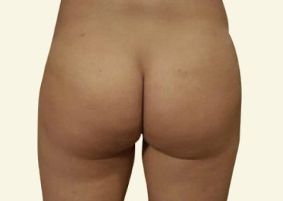 Fatgrafting (buttocks)_2_after