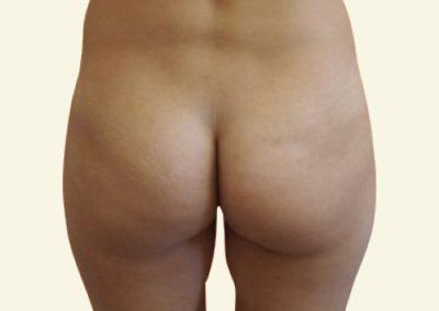 Fatgrafting (buttocks)_2_before