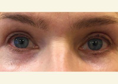 Upper+lower eyelids after