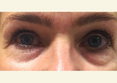 Upper+lower eyelids before