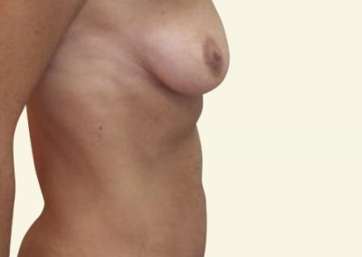 abdomino+breastlift with augmentation_2_before