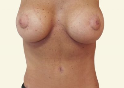 abdomino+breastlift with augmentation_after