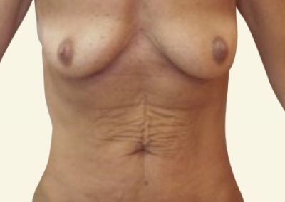 abdomino+breastlift with augmentation_before