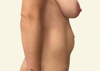 abdominoplasty_1_before