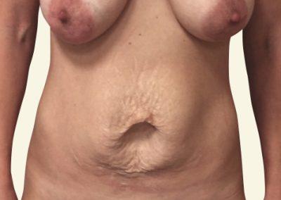 abdominoplasty_2_before