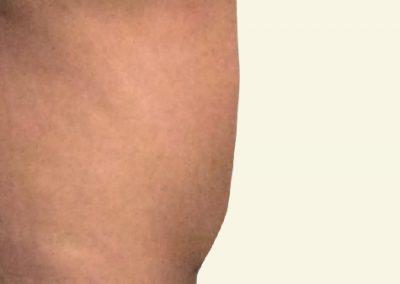 abdominoplasty_4_after