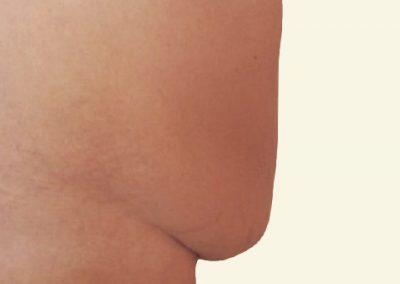 abdominoplasty_4_before