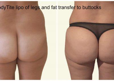 bodytite and fatgraft