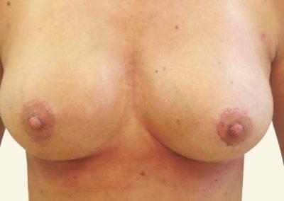 breastlift+augmentation_1_after