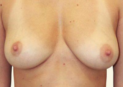 breastlift+augmentation_1_before