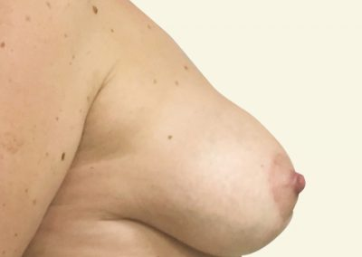 breastlift+augmentation_5_after