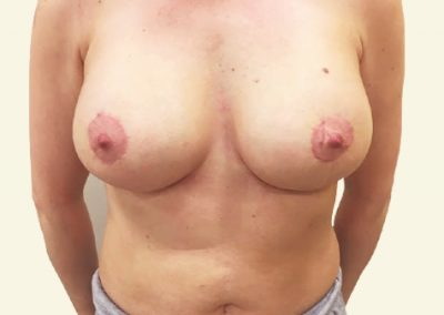 breastlift+augmentation_6_after