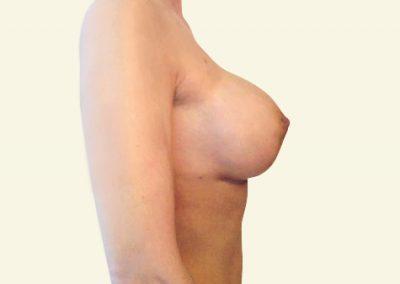 breastlift+augmentation_after