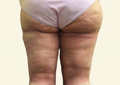 thighlift_2_after