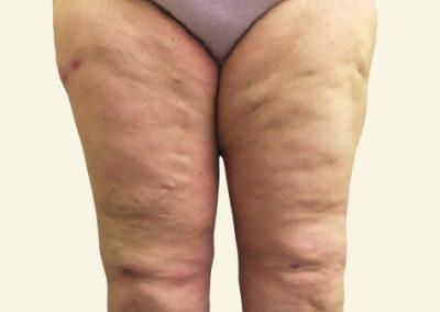 thighlift_after