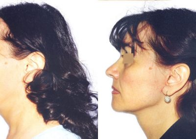 facelift-1 before and after